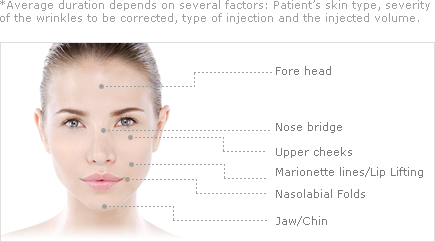 *Average duration depends on several factors Patient's skin type, severity of the wrinkles to be corrected, type of injection and the injected volume.